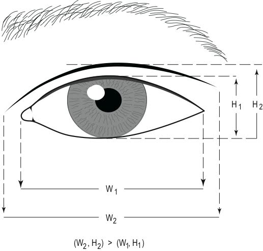 double eyelid crease diagram